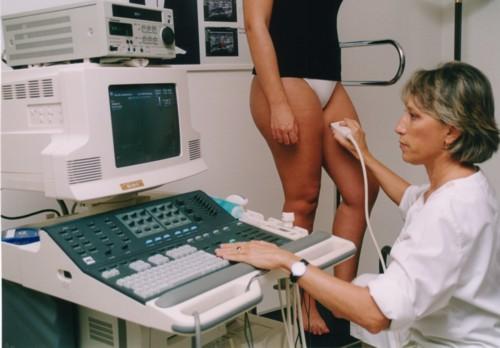 Quando devo consultar um médico vascular?