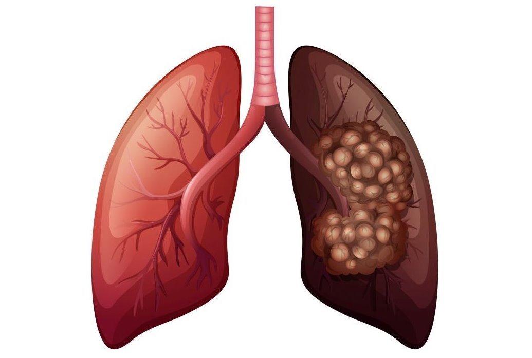 câncer de pulmão fatores de risco