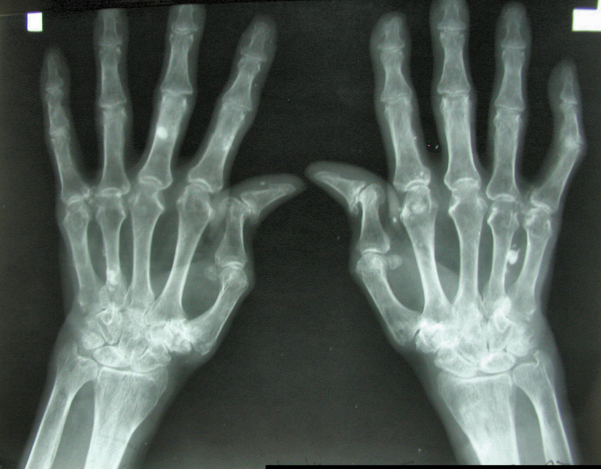 Quais os motivos para procurar um reumatologista?